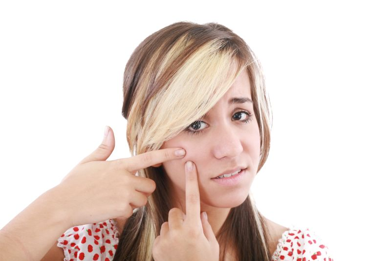 Akné – symptómy apríčiny